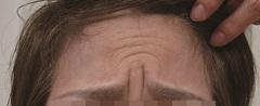 眉間治療前|ボトックス注射