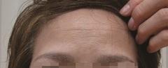 眉間治療後|ボトックス注射