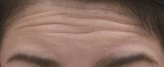 額 治療前|ボトックス注射
