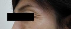 目尻 治療前|ボトックス注射