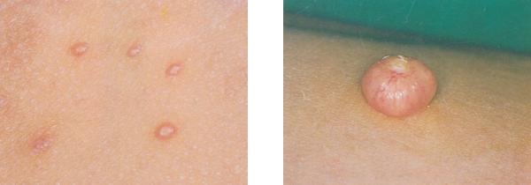 水いぼ 症例写真