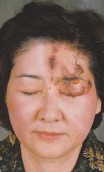 帯状疱疹 症例写真