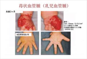 苺状血管腫(乳児血管腫)